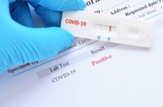 Test sierologici gratuiti, partono gli screening per i residenti di Gaeta.